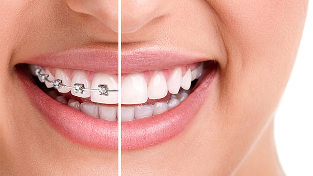 Can dental insurance cover braces?